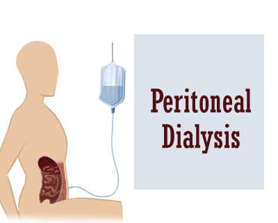 Guideline for Laparoscopic Peritoneal Dialysis Access Surgery