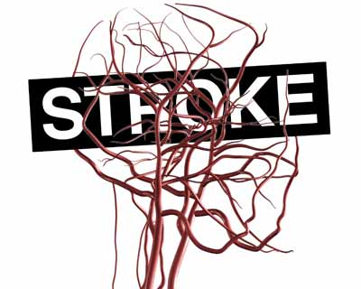 Healthy lifestyle offsets genetic risk of Stroke