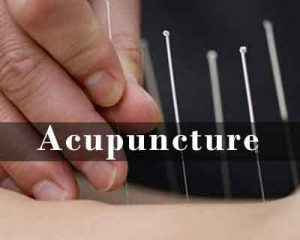 Acupuncture significantly reduces anxiety in dental patients