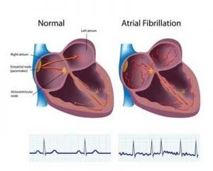 Men develop Atrial fibrillation earlier than women