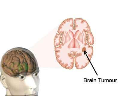 Resistance Mechanism of Aggressive Brain Tumors Revealed