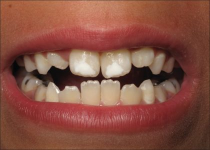 Breastfeeding decreases chances and severity of dental caries in children