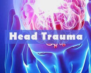 Pediatric law and radiology experts define abusive head trauma