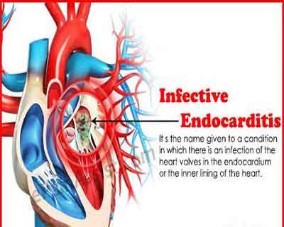 Cardiology Update: Infective Endocarditis- Surgical intervention or medical management??