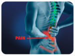 Pulsed radiofrequency relieves acute back pain and sciatica