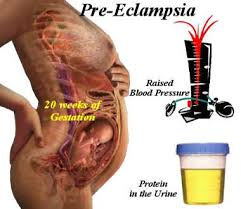Women with high thyroid and low HCG more prone to preeclampsia: Study