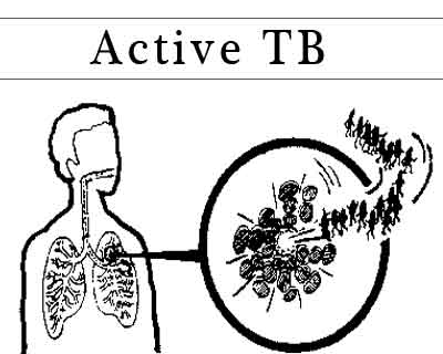 NICE Guideline 2016- Active Tuberculosis