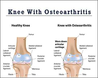 Nonsurgical Management of Osteoarthritis of the Knee-AAOS Guidelines