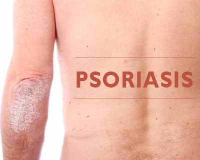 Largest psoriasis meta-analysis to date yields new genetic clues