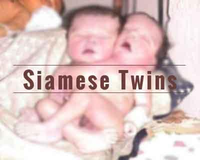 Maharashtra: Siamese twins born in latur, die on their way to tertiary care centre