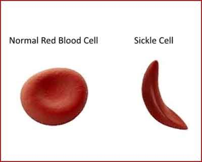 Long Term Opioids May Not Be Best Pain Management Option for All Sickle Cell Patients