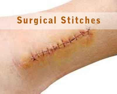 Magentic Device developed to replace stitches and staples