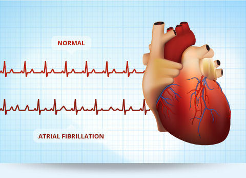 Catheter ablation improves outcomes in atrial fibrillation and heart failure patients, finds study