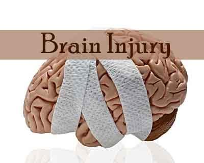 Tranexamic Acid may reduce head injury-related deaths upto 20% finds Lancet study