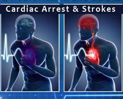 Smartphones can help save life during cardiac arrest, strokes