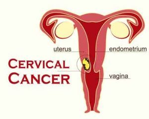 It's a better Screening method for Cervical cancer