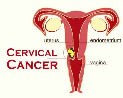 Researchers discover new subtype of cervical cancer