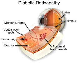 Intravitreal aflibercept an effective option for proliferative diabetic retinopathy