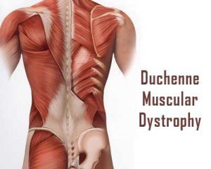 AAN Guideline-Corticosteroid treatment of Duchenne Muscular Dystrophy
