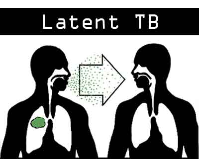 NICE Guideline 2016-Latent TB