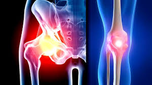 Hip steroid injections associated with risky bone changes