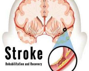 AHA/ASA Guidelines for Adult Stroke Rehabilitation and Recovery-2016