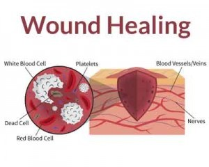 Why wound healing takes longer as you age