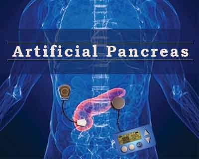 Artificial pancreas likely to be available by 2018