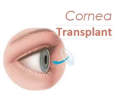 Simple procedure may replace cornea transplant