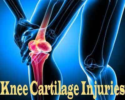 Osteochondral allograft transplantation effective for treating knee cartilage injuries