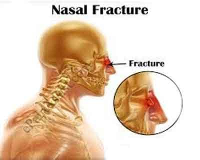Nasal fracture most common injury during vehicle collisions