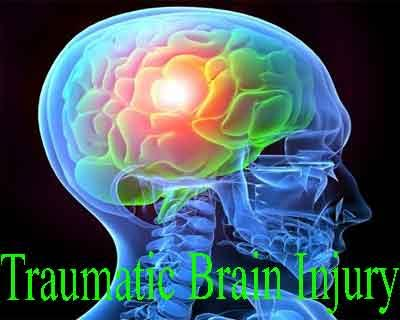 Traumatic Brain Injury – Standard Treatment Guidelines