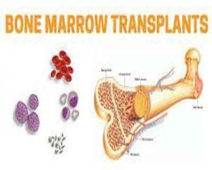 A hope ahead for bone marrow transplant patients