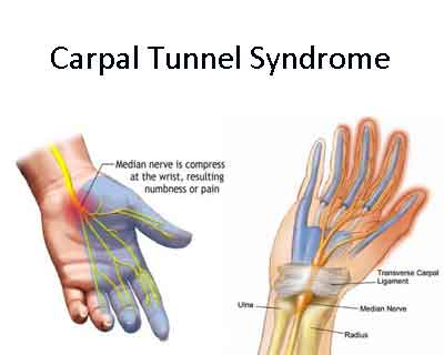 Management of carpal tunnel syndrome : American Academy of Orthopaedic Surgeons guidelines