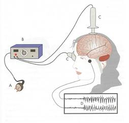 Researchers caution on risks of self-administered brain stimulation(tDCS)