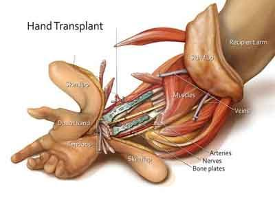 Kochi : Youth undergoes double elbow level hand transplant