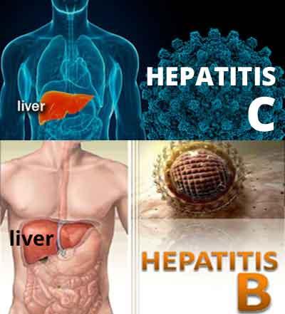 Hepatitis B, C pose huge health challenge in India: Experts