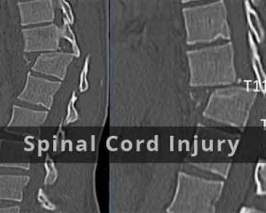 Spinal cord injury affects the heart