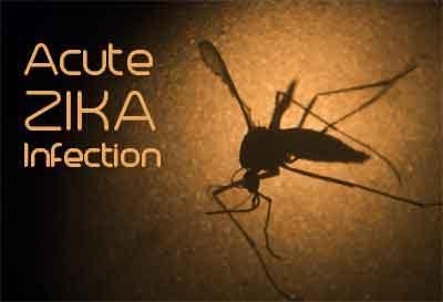 Acute zika infection may damage sensory nerves