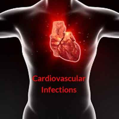 India Antibiotic Guideline for Cardiovascular Infections