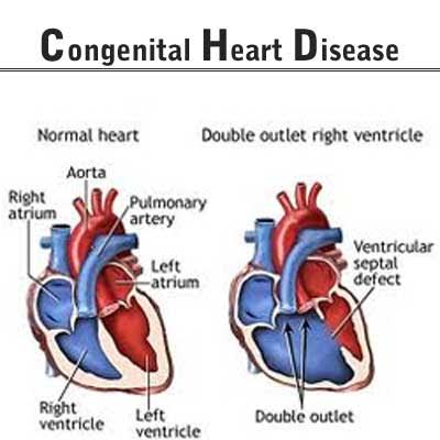 essay on congenital heart disease