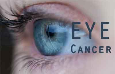 Genetic factors may increase risk of eye cancer