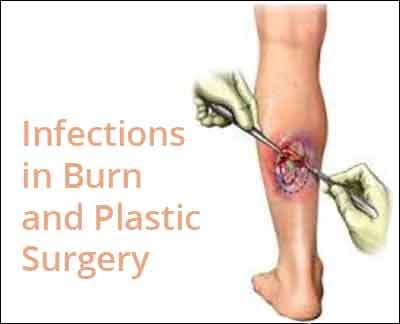 India Antibiotic Guideline For Infections In Burn and Plastic Surgery