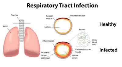Antibiotic Guideline for Respiratory Tract Infections