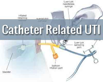 Prevention of Catheter Associated UTI in Hospitals - Guidelines