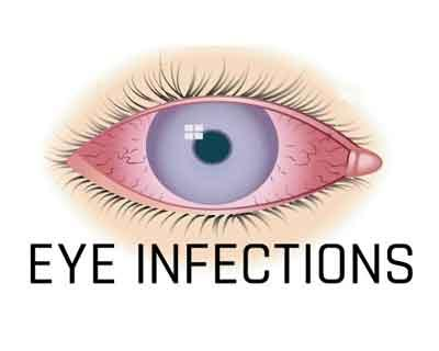 Indian Antibiotic Guideline For Eye Infections