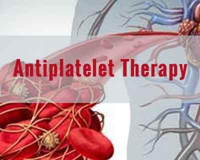 Ticagrelor monotherapy after 1 month of DAPT good enough after multivessel PCI: JACC