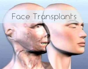 Should we keep doing face transplants?