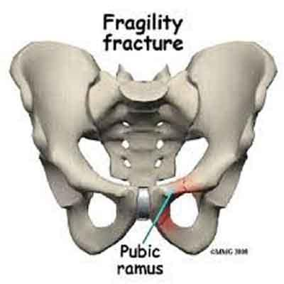 Suspect, detect and protect: Revised AAOS position statement focuses on preventing subsequent fragility fractures