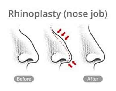 PAT flap technique aesthetic -it camouflages tip grafts in Rhinoplasty